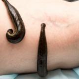 Blutegel können in Potsdam bei der Behandlung der Schulterarthrose manchmal eine Operation vom Schulterspezialist in Potsdam verhindern
